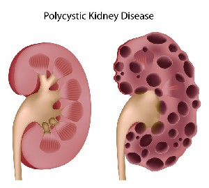 Polycysteuze nieren